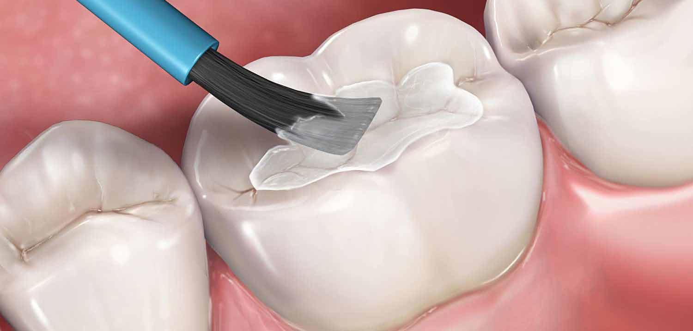 Prirodno izbeliti zube